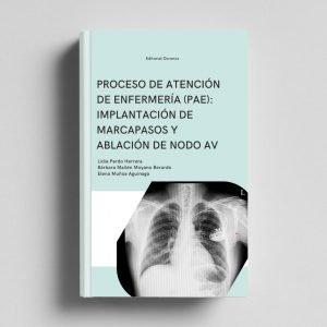 pae-marcapasos-ablacion-nodo-av